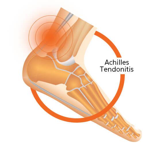 Achilles Tendonitis Diagram Image