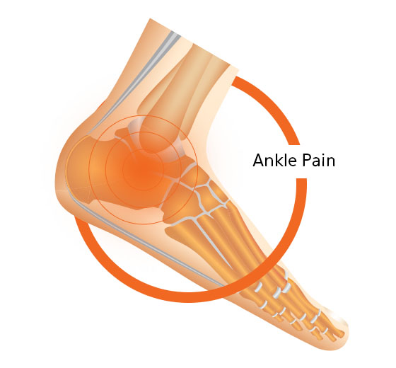Ankle Pain Foot Diagram Image