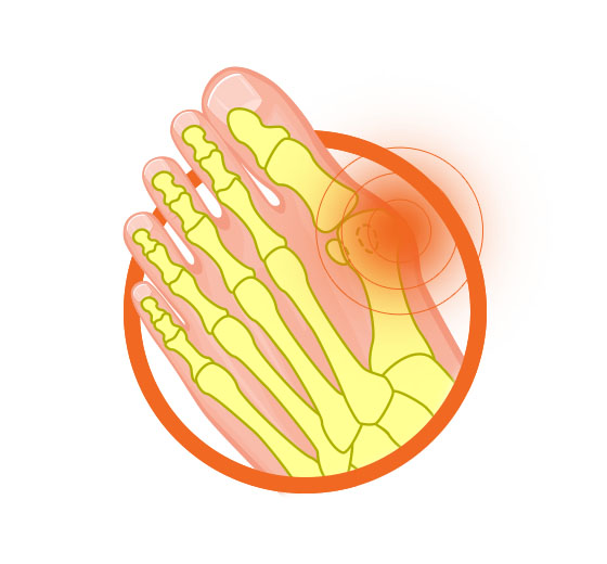 Bunions Foot Diagram Image